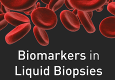 Featured Product - Exiqon NGS and qPCR Services for RNA Biomarker Discovery in Liquid Biopsies