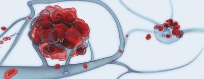 ILLU_0246_GG_Tumor Metastasis.jpg