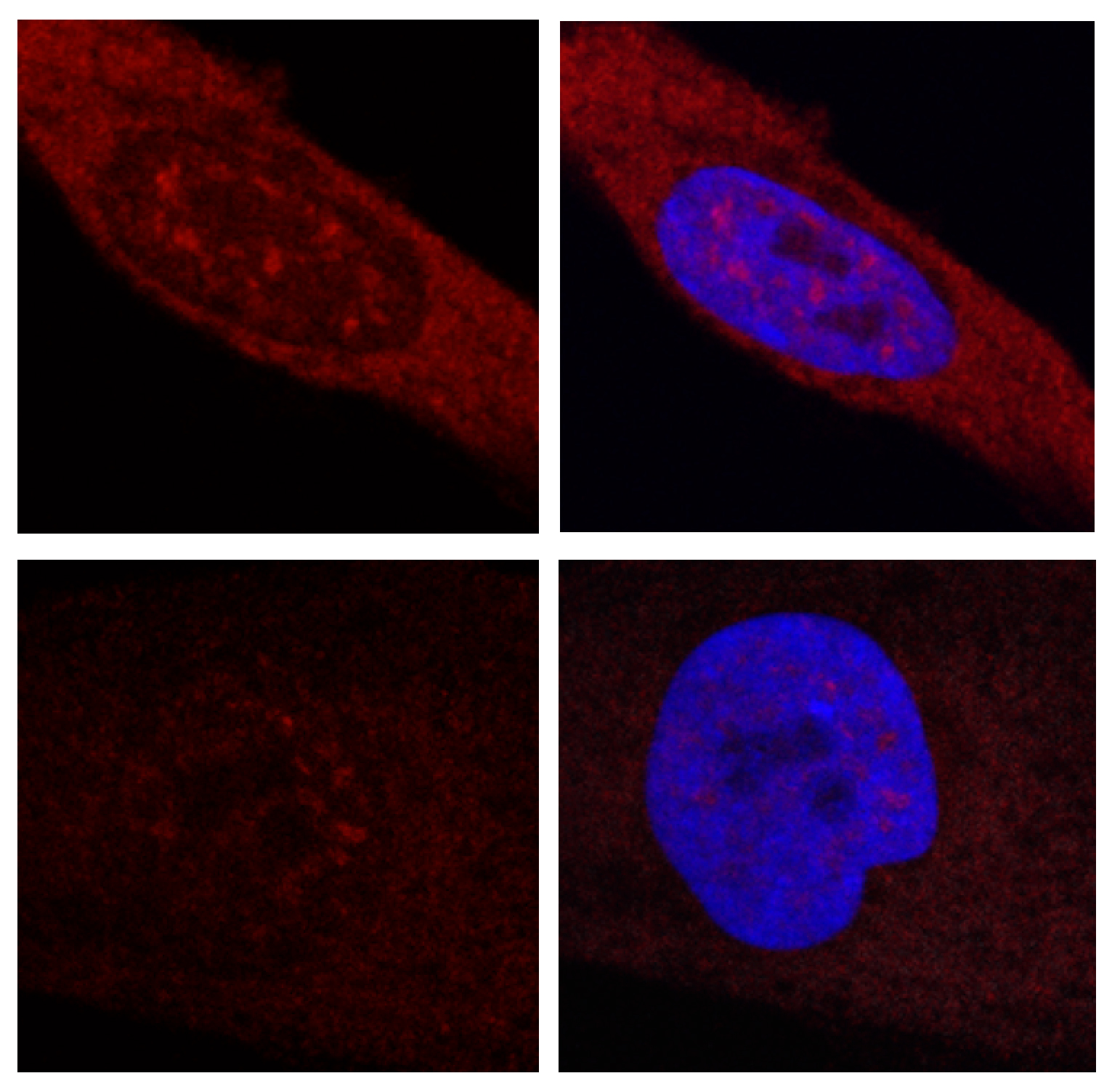 10.11.2016 CRG_Article JCI_Cells expressing huntingtin.jpg