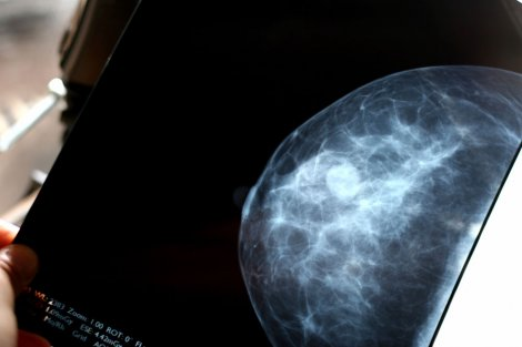 breast-scan.jpg
