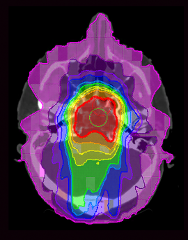 graduated-doses-of-radiation-ct-scan-of-brain-01.png