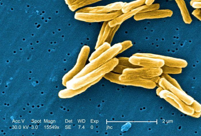 tuberculosis 23.8.2016.jpg