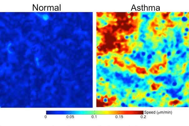 Normal-vs-asthma-cells_605.jpg