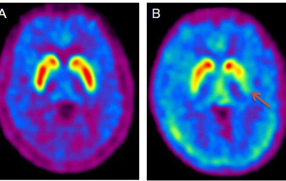 Parkinsons-brain.jpg