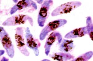 plasmodium_falciparum_feature_image.jpg