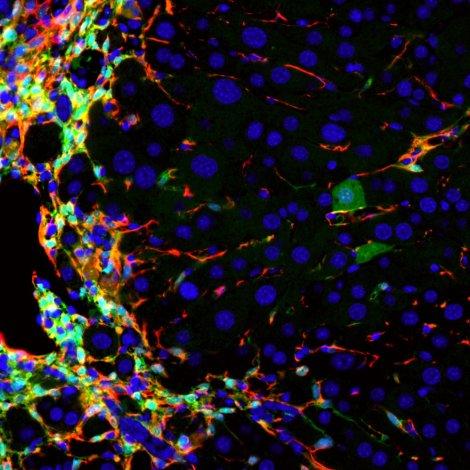 Mouse-Liver-Cells.jpg