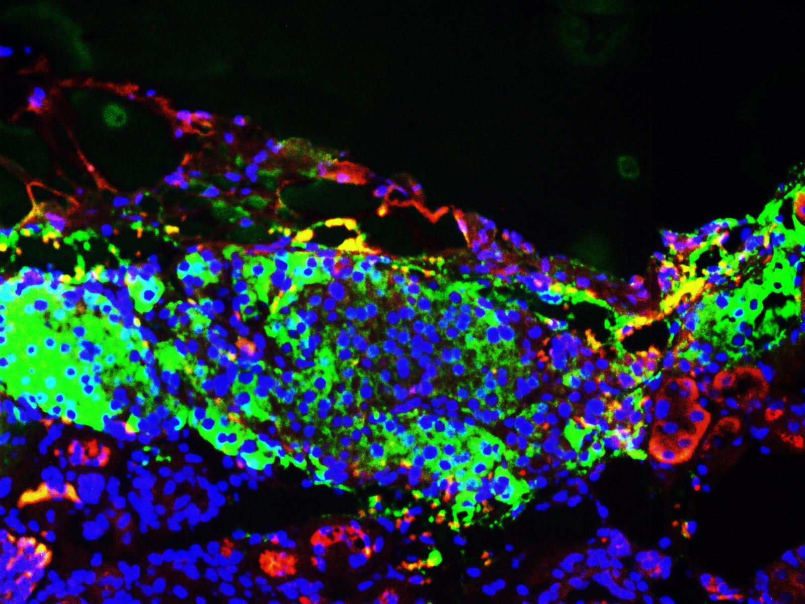 ibeta-in-Kidney-Ins-Green-Gcg-Red-Nucleus-Blue-x20.jpg