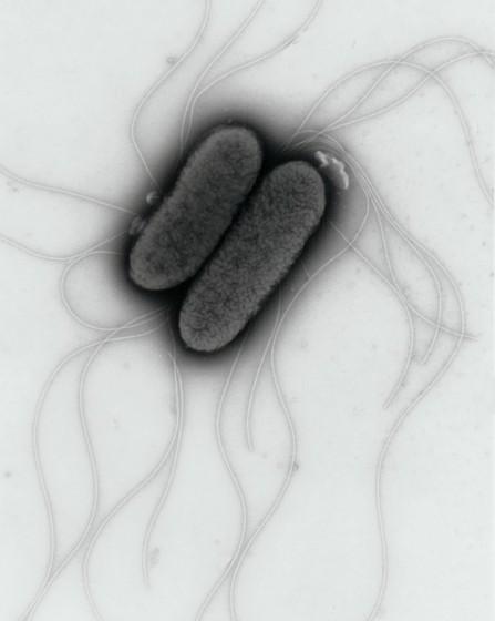 Salmonella41-447x560.jpg